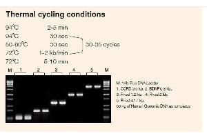 Image no. 1 for EasyTaq® DNA Polymerase (ABIN5519433)