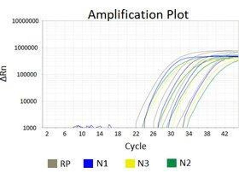 Image no. 1 for Coronavirus (SARS-CoV-2) Real Time RT-PCR Nucleic Acid Detection Kit (ABIN6952468)