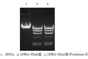 Agarose Gel Electrophoresis (AGE) image for Proteinase K (ABIN6383959)