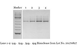 Image no. 2 for Binuclease® Nuclease (ABIN6383966)