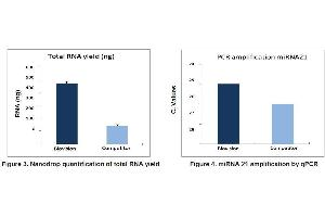 Image no. 2 for BasicExoRNA™ Basic RNA extraction kit (Pre-isolated exosomes, 20 reactions) (ABIN6240777)