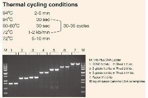 Image no. 1 for TransTaq®-T DNA Polymerase (ABIN5519580)