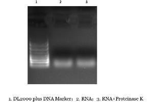 Enzyme Activity Assay (EAA) image for Proteinase K (ABIN6383955)