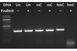Restriction Digest (RD) image for PvuRts1 I restriction enzyme (ABIN2669403)